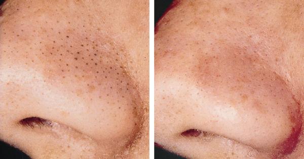 La piel grasa de la persona y los tiempos extendidos sobre la persona que hacer
