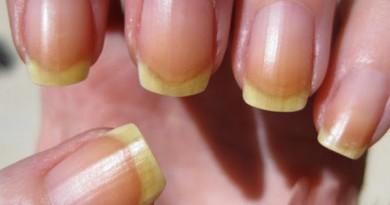 uñas-amarillas