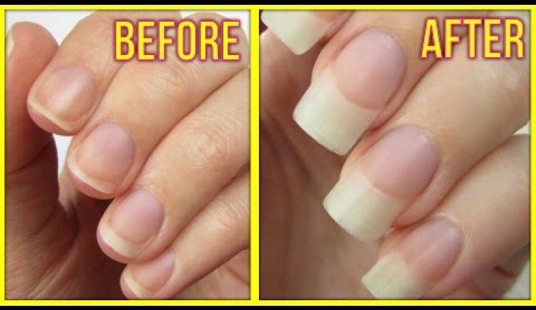 Cuanto curar el hongo de las uñas de los pies