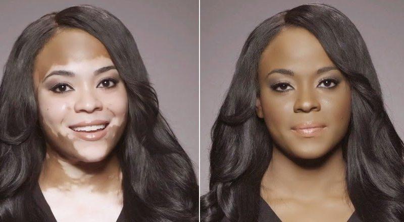 causas-del-vitiligo